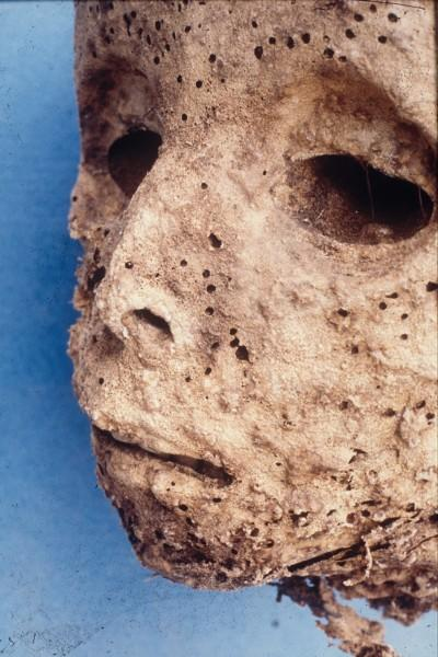 La momia puede ser el ejemplo más antiguo de hepatitis en humanos