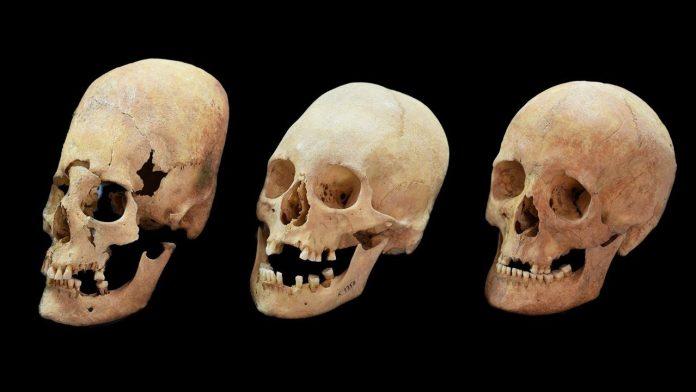 Revelan el enigma de los misteriosos cráneos alargados de Europa Central