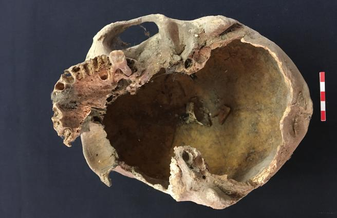 Cráneo, presumiblemente de Arnau de Torroja