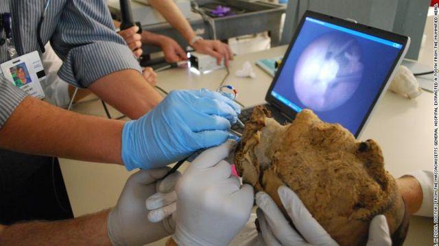 En 2009, los médicos del Hospital General de Massachusetts extrajeron un diente de la cabeza momificada.