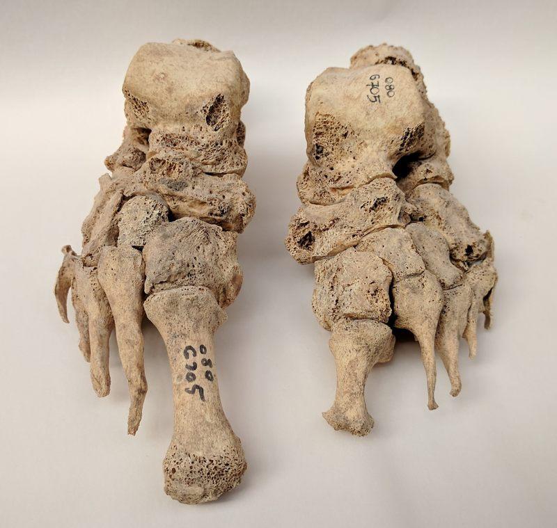 Los restos óseos muestran evidencia de lepra en el cementerio de Odense St Jørgen en Dinamarca, que se estableció en 1270 y existió hasta 1560
