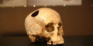 Los Incas hicieron mejores cirugías craneales que los cirujanos de EE.UU. 400 años después