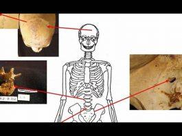 Cáncer hallado en antiguos egipcios muestra que el cáncer actual es mucho peor
