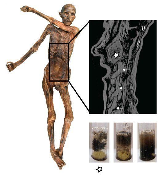 La preservación del tracto gastrointestinal y la textura del contenido del Hombre de Hielo. La imagen radiográfica muestra el estómago completamente lleno (asterisco) y las asas intestinales del tracto gastrointestinal inferior (flechas). Las muestras de contenido del estómago (izquierda, asterisco) y de dos sitios diferentes en el tracto gastrointestinal inferior (centro, derecha) que se rehidrataron en phosphate buffer se muestran debajo de la imagen radiográfica