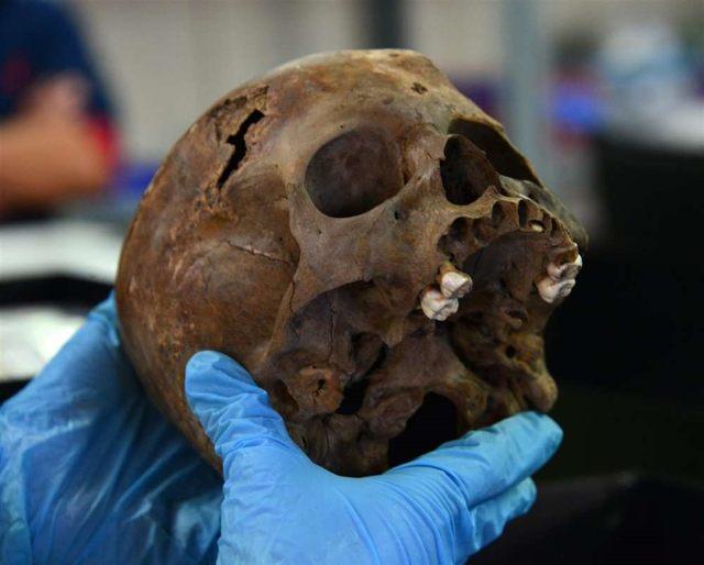 El cráneo del niño.