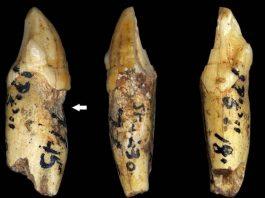 Antepasados humanos tuvieron los mismos problemas dentales que nosotros