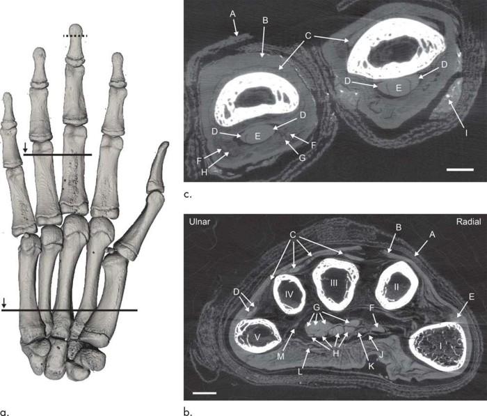 Las imágenes muestran la TC de la mano momificada