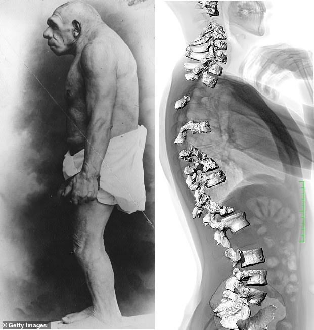 Los primeros estudios sugirieron que los neandertales eran encorvados (como se muestra a la izquierda). Un nuevo estudio muestra que su curvatura espinal era similar a la nuestra. La columna vertebral neandertal se muestra a la derecha, superpuesta en una exploración de la espalda humana moderna para resaltar su similitud