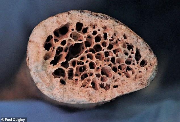 Una sección transversal de una clavícula no afectada