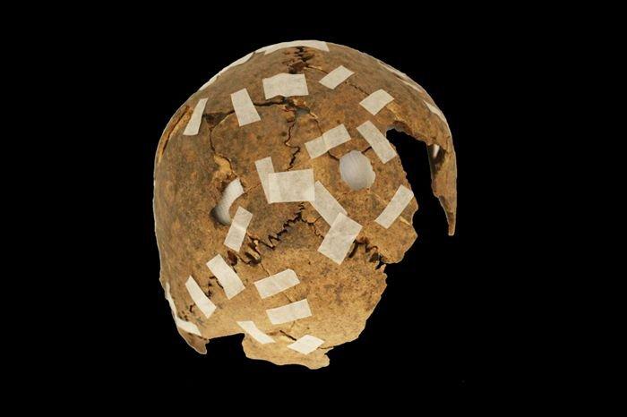 Un cráneo trofeo fragmentario con modificaciones de agujeros perforados